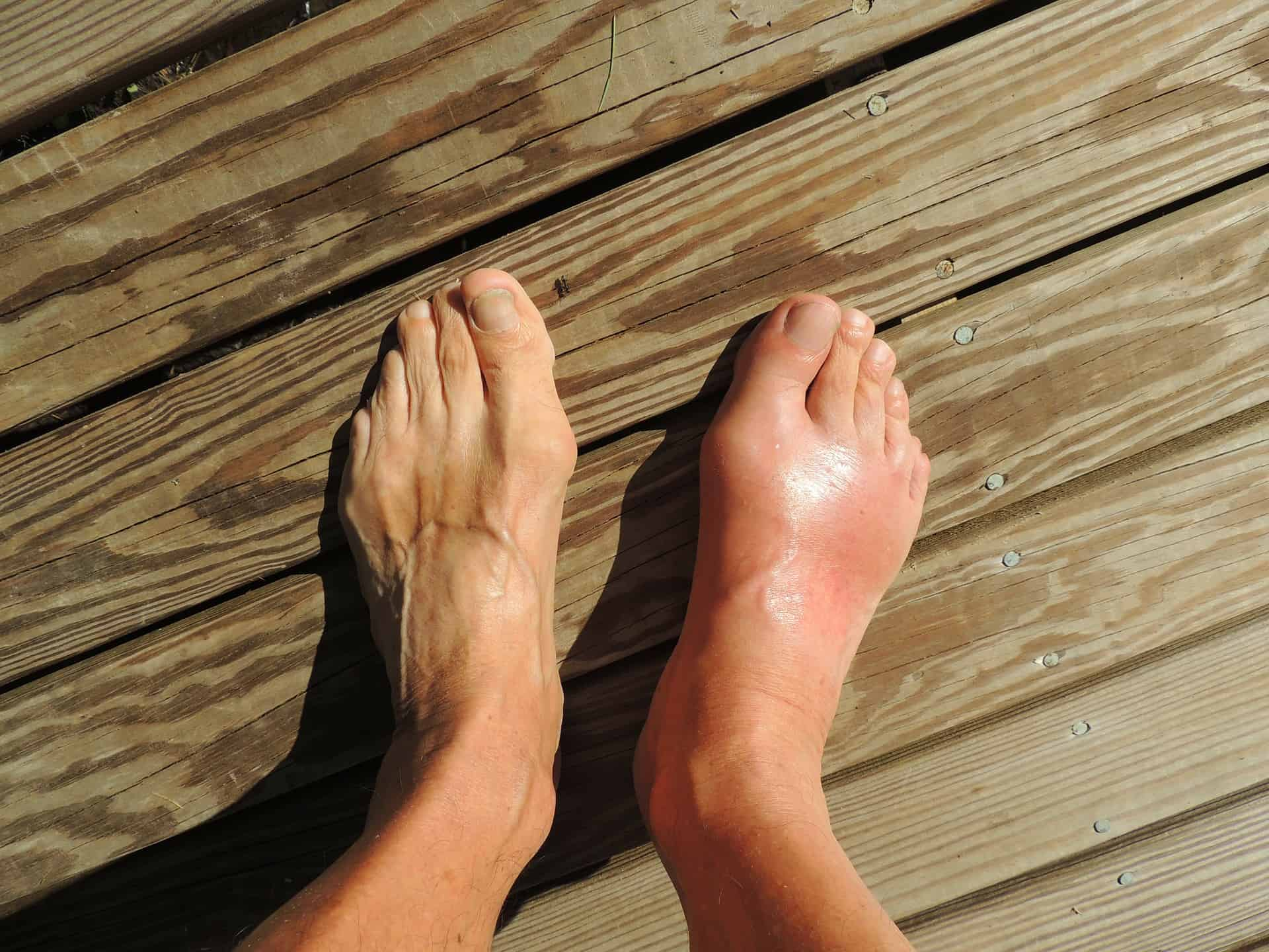Some Good Natural Remedies For Gout